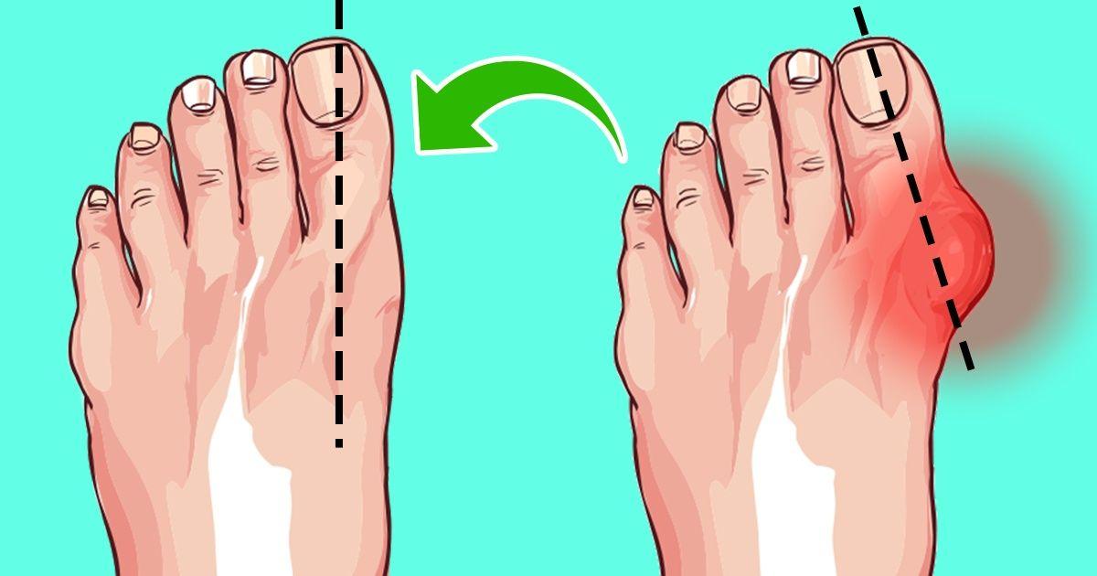 6 طرق سهلة للتخلص من الورم الملتهب لإصبع القدم دون جراحة