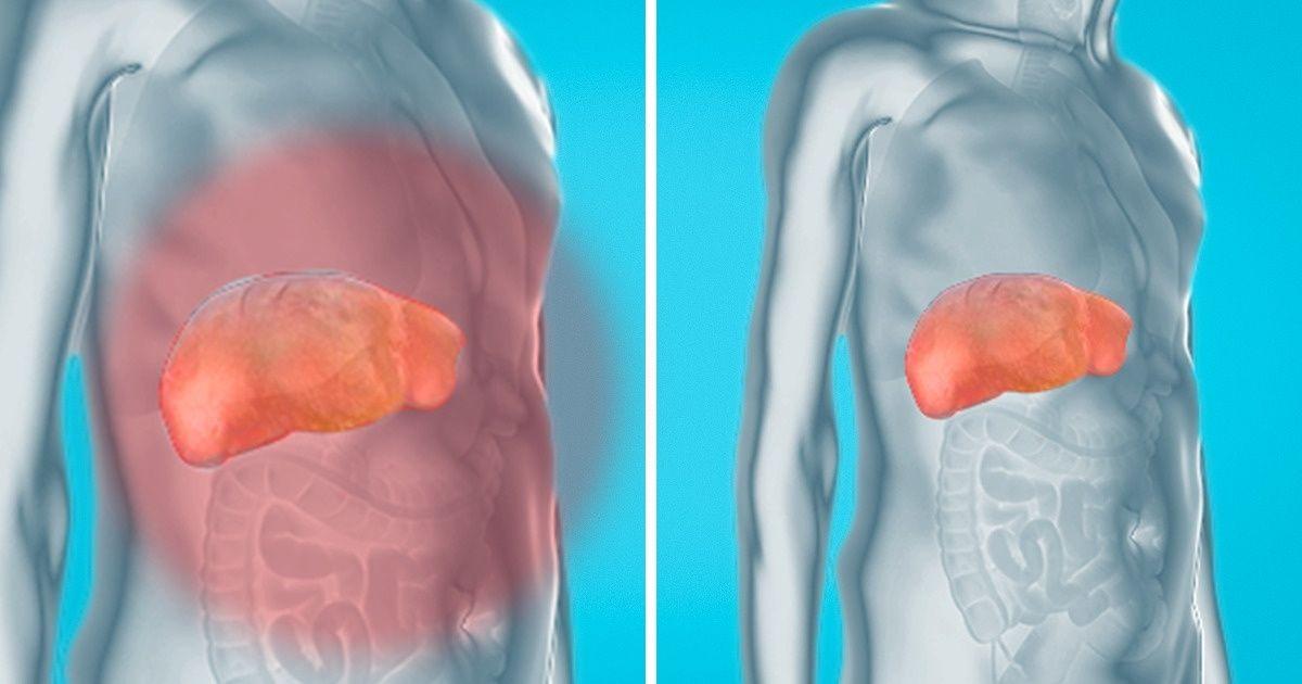 كيفية إزالة السموم من الكبد والكلى والمثانة بشكل طبيعي وآمن