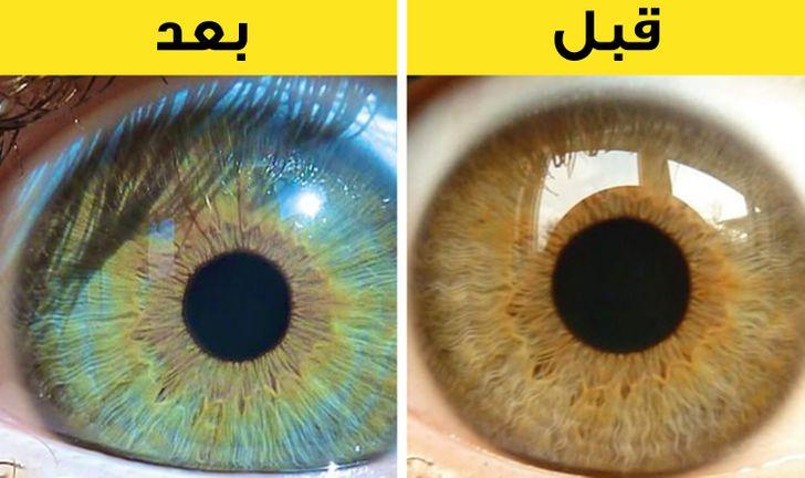 7 عوامل بإمكانها أن تغي ـر لون عينيك